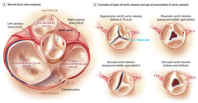 Alison Burke || Medical and Scientific Illustration || Portfolio