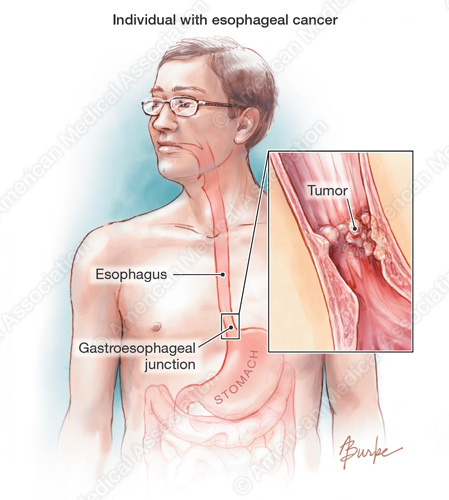 esophageal cancer research paper