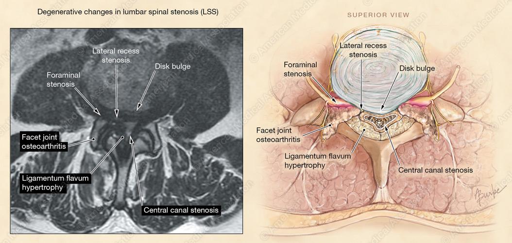 Alison Burke Medical And Scientific Illustration Portfolio